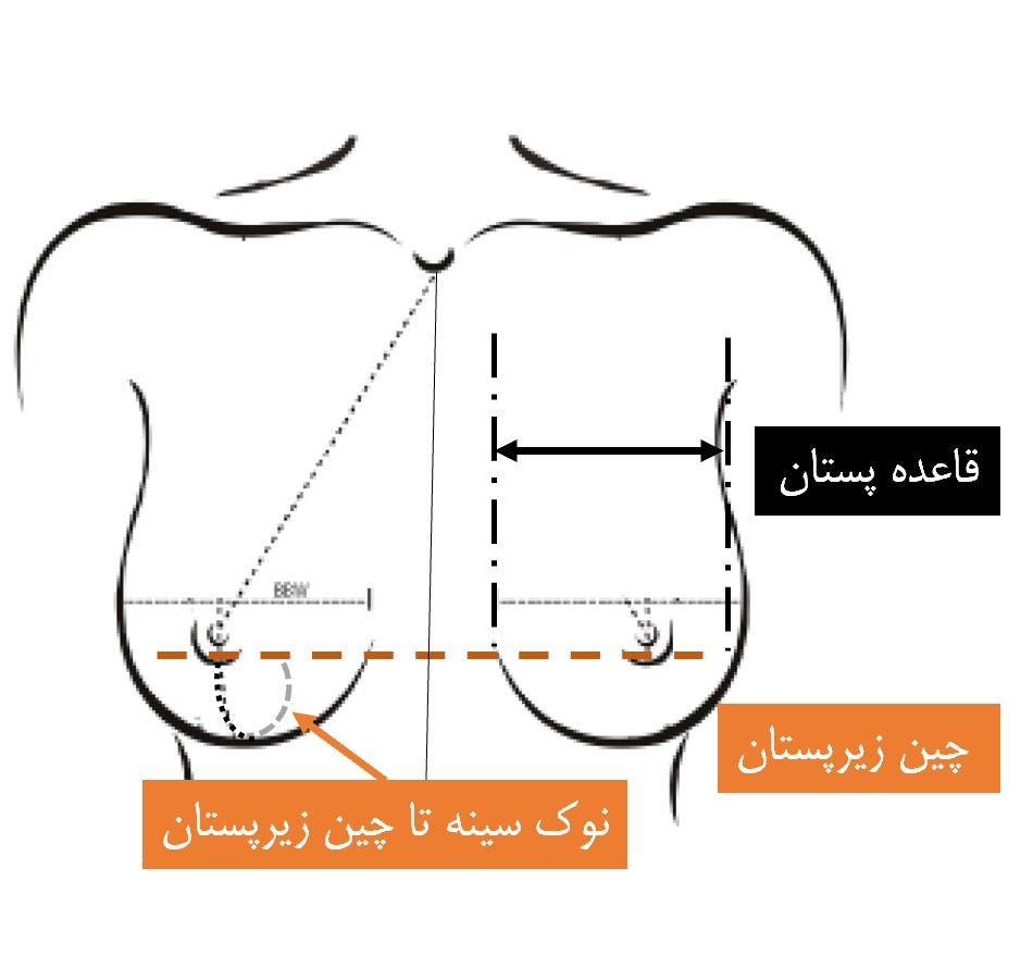 مشخصات بافت سینه