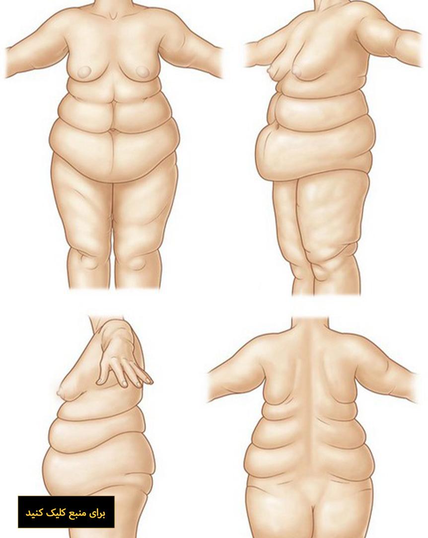ظاهر بعد کاهش وزن شدید
