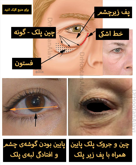 اختلالات پیری پلک پایین