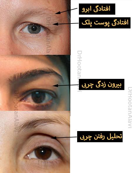 اختلالات پیری پلک بالا
