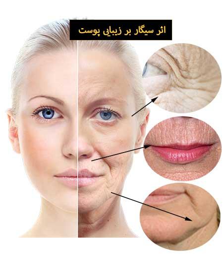 تأثیر سیگار در ظاهر پوست