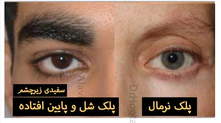 سفیدی زیر چشم