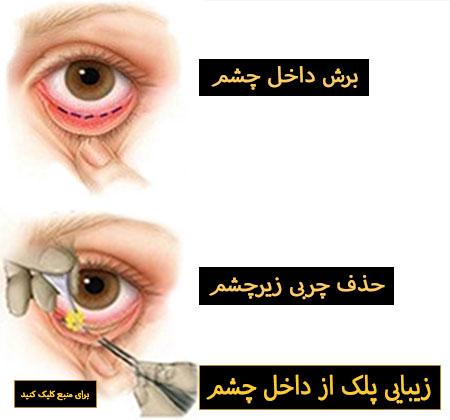جراحی از طریق ملتحمه