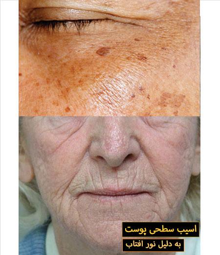 اسیب پوست به دلیل افتاب
