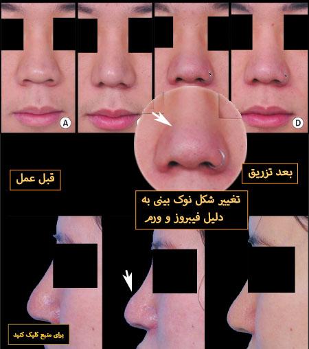 تزریق کورتون در نوک بینی