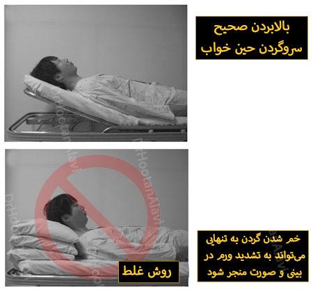 خوابیدن بعد عمل بینی