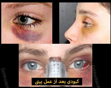 کبودی بعد عمل بینی
