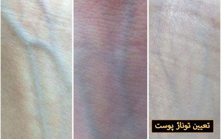تناژ پوست